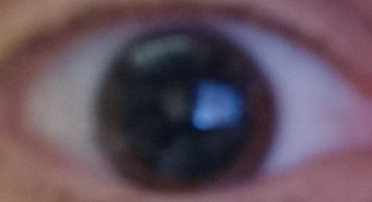 Kitágult pupilla (elmosódva)